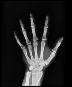 Hyaluronic Acid for Bone Health
